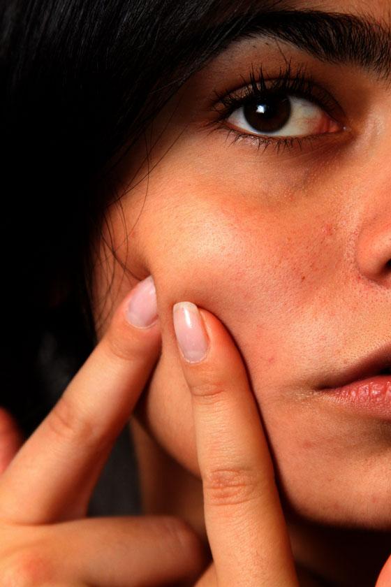 Acne Skin Disorders