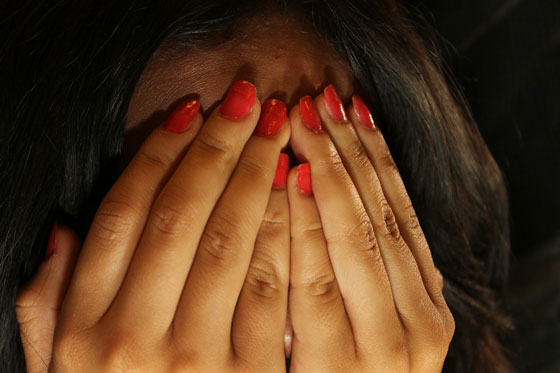 Skin Disorder Shame